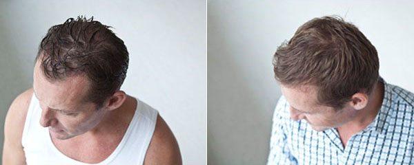 poseidon hårklinik