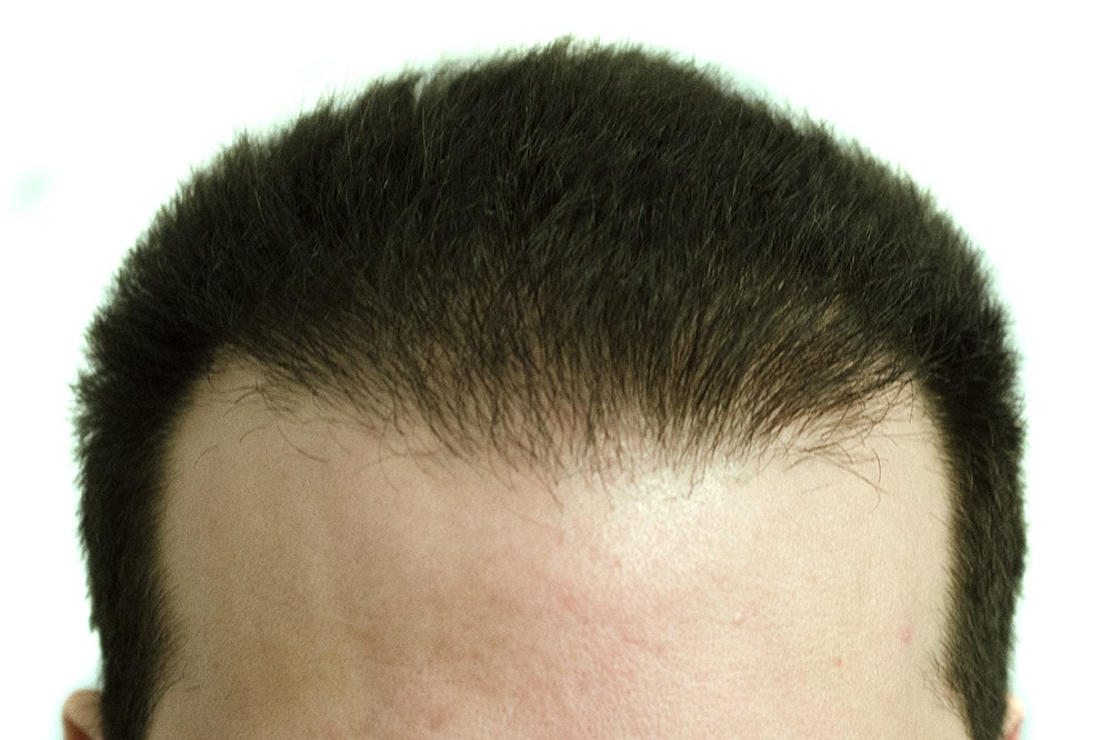 Hårtransplantation av front ock vikar