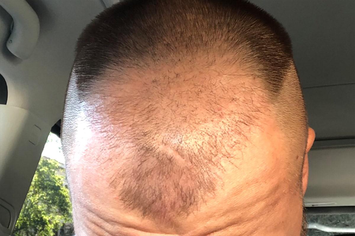 Före hårtransplantation