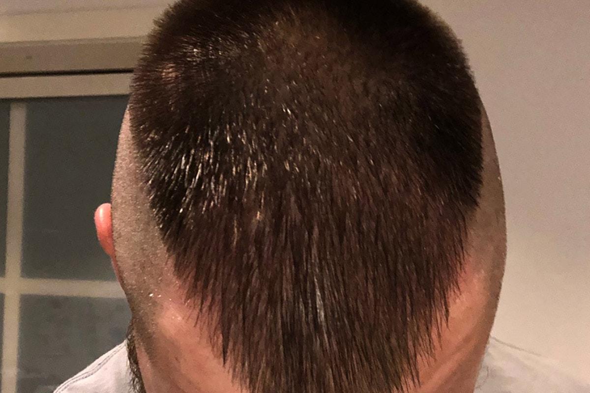 Efter hårtransplantation